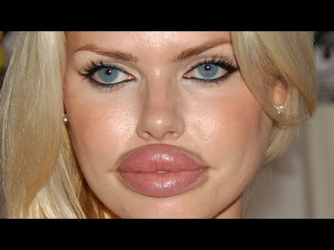 Worst plastic surgery fails ever!
