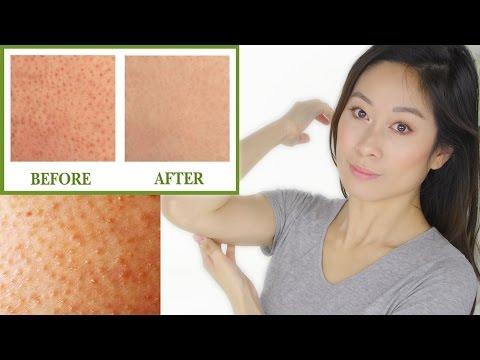 "Keratosis pilaris treatment | bumps on skin ""chicken skin"" | vivienne fung"