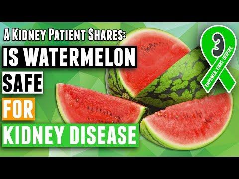Kidney diet tips: is watermelon safe for kidney disease patients on a renal diet