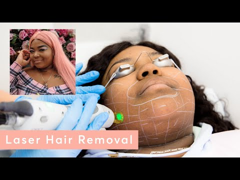 My facial hair experience - laser hair removal